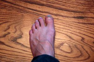 Fot med blå nagel